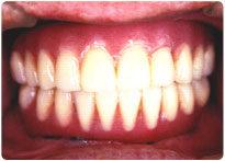 お口の中の健康はこのようにして保たれています