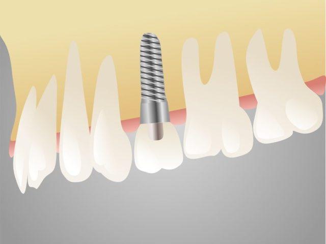 歯を喪失した場合のインプラントという選択