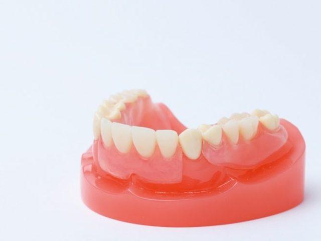 金属のバネがない入れ歯・スマイルデンチャーについて