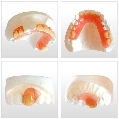 ミラクルフィットとはどんな義歯ですか?