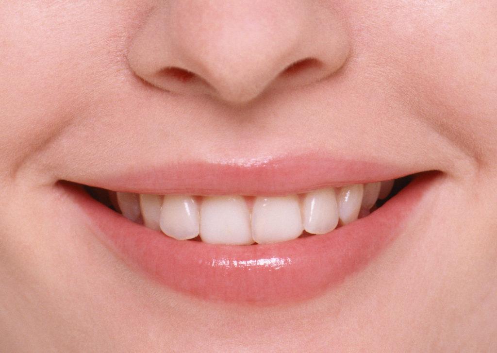 歯肉ホワイトニング