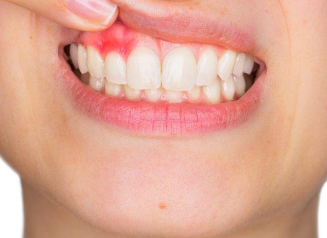 歯周病が治らないと諦めていませんか?歯周病が改善しない3つの理由