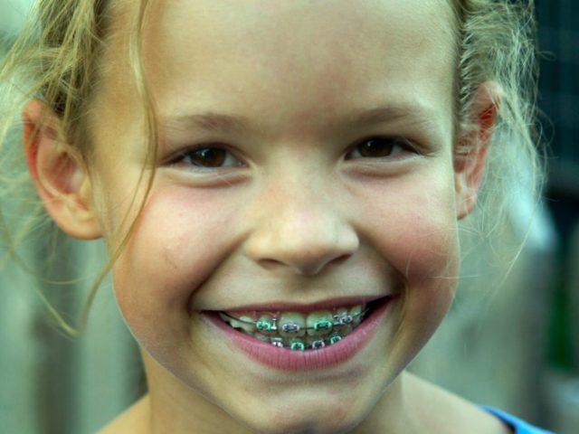 気になったら、7才までに歯並びチェックを