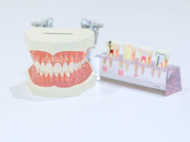 自分の歯が少ない人は心臓病のリスクが高い!