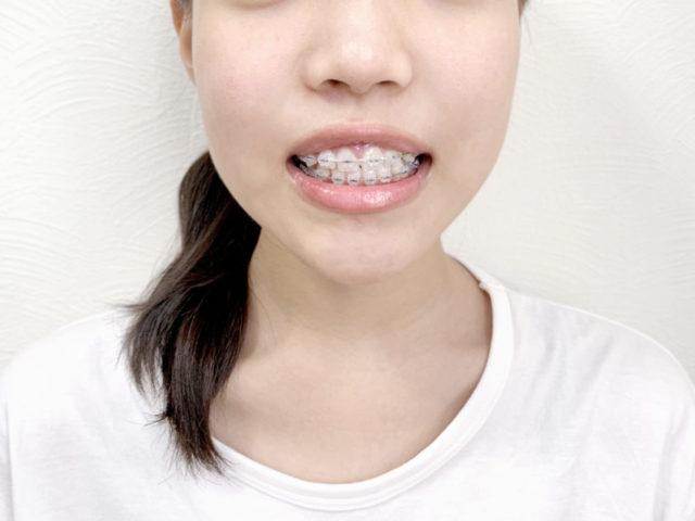 30代、40代で入れ歯になってしまいました・・・