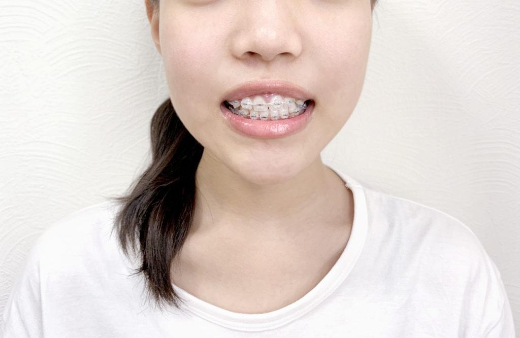 部分矯正で出っ歯はなおるの?【部分矯正の費用は?】