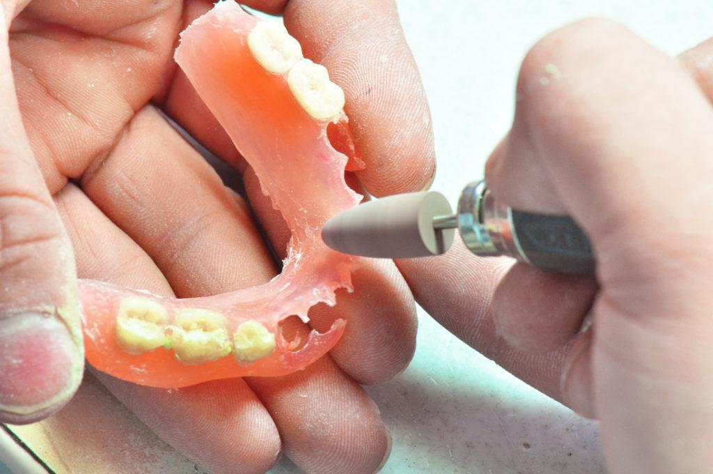だいたい何歳から入れ歯になりますか?